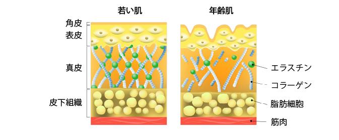 若い肌と年齢肌の断面図